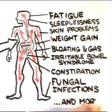 Candida_Albicans_Sugar_Causes_Cancer_Fungus_Eradicate