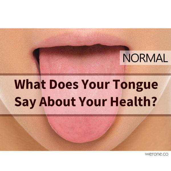 What Does Your Tongue Say About Your Health?